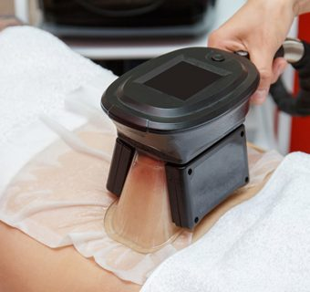 [Press Release] Little-known Permanent Side Effects of Cryolipolysis (Fat Freezing Treatments)